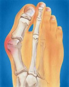 bunion pain or painful bunion