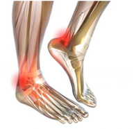 heel pain or arch pain